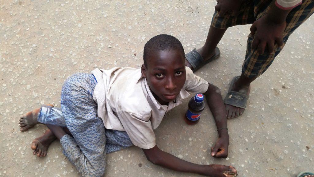 A young polio survivor at the Computer Village, Ikeja, Nigeria